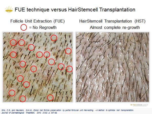 clinica per il trapianto capelli