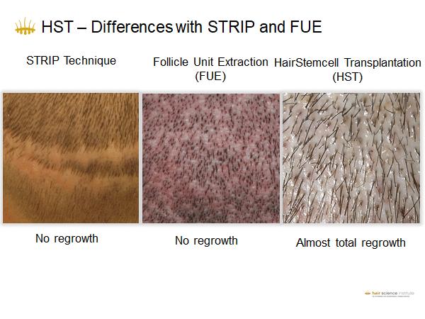 differenza tra le tecniche di trapianto di capelli