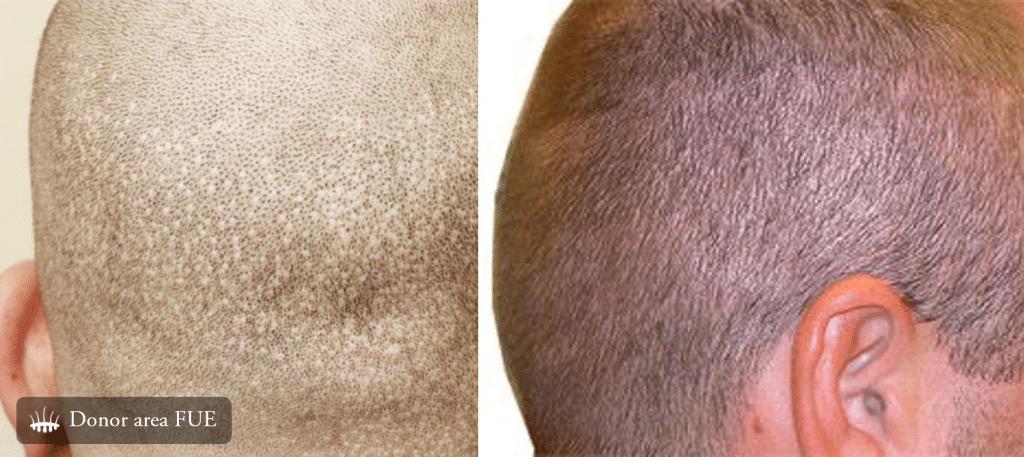 trapianto di capelli uomo
